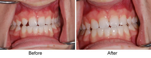 reshaping-teeth1